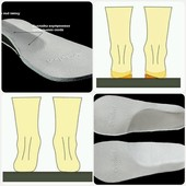 Ортопедические стельки ВП-1-2-3-4-5-6.Ortofoot. Сбор + наличие.